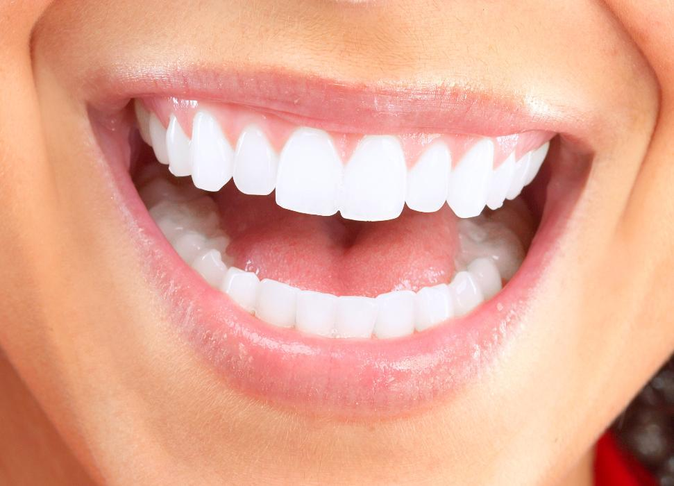 Woman smiling after professional teeth whitening in Seattle, WA