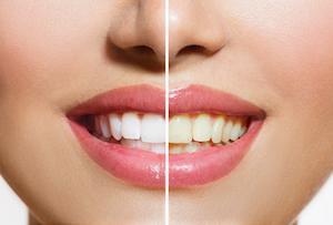 teeth whitening greenwood wa