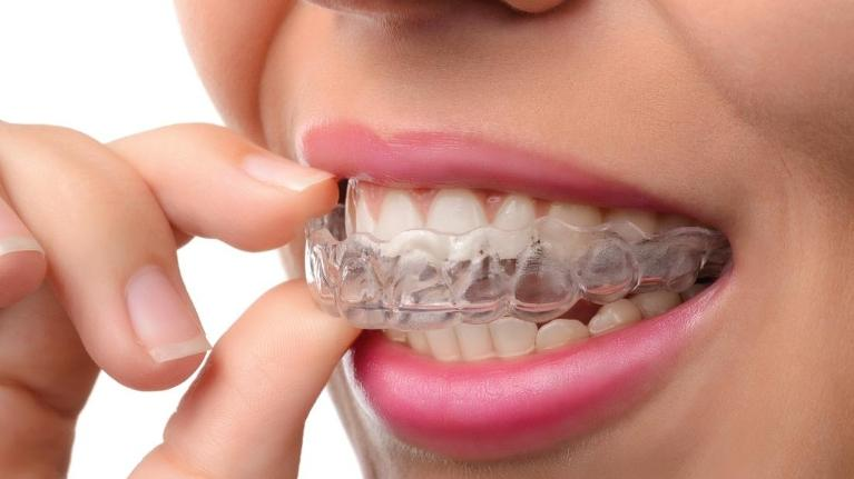 woman putting in clear aligner | invisalign seattle wa