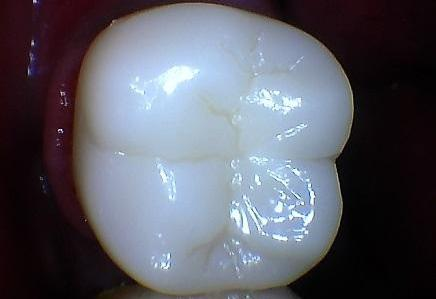 White Zirconia Crown | Phinney Ridge Dental