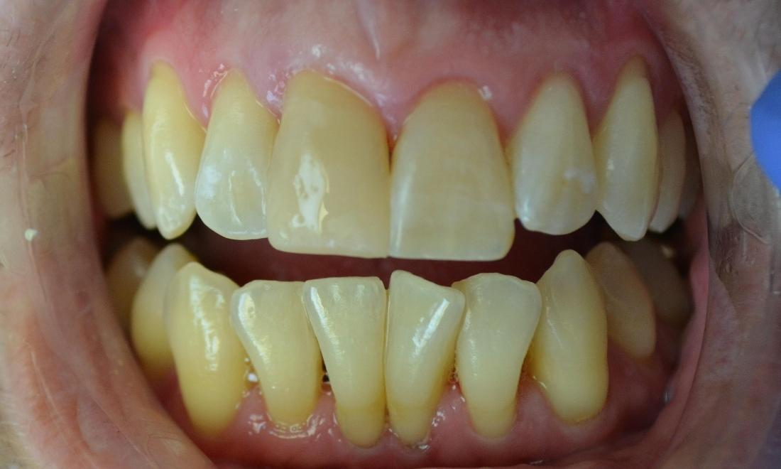 Tooth Colored Filling | Phinney Ridge Dental