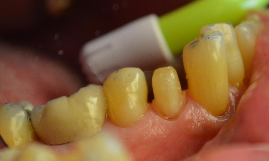 Tooth-Colored Crowns | Phinney Ridge Dental