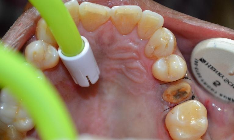 Gum-Bone-Surgery-After-Image